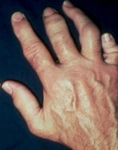 симптомы артропатического псориаза