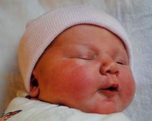 диатез у новорожденных на лице лечение