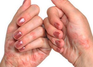 грибковая экзема на руках