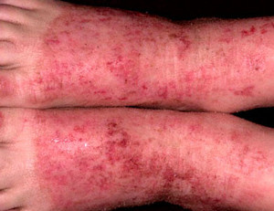 инфекционная экзема на ногах