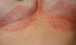 дрожжевой грибок на коже