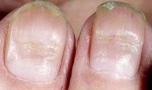 как передается грибок ногтей