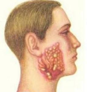 лечение актиномикоза