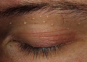 мелкие жировики на лице как избавиться