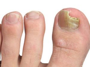 грибок на подушечках пальцев ног