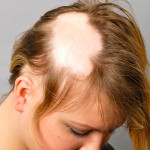 Очаговое выпадение волос